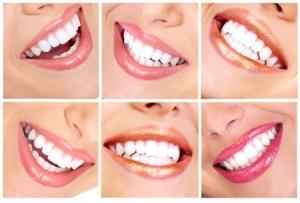 отбелите зубы в хабаровской клинике